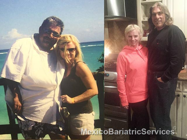 David Before & After Bariatric Surgery - Mexico