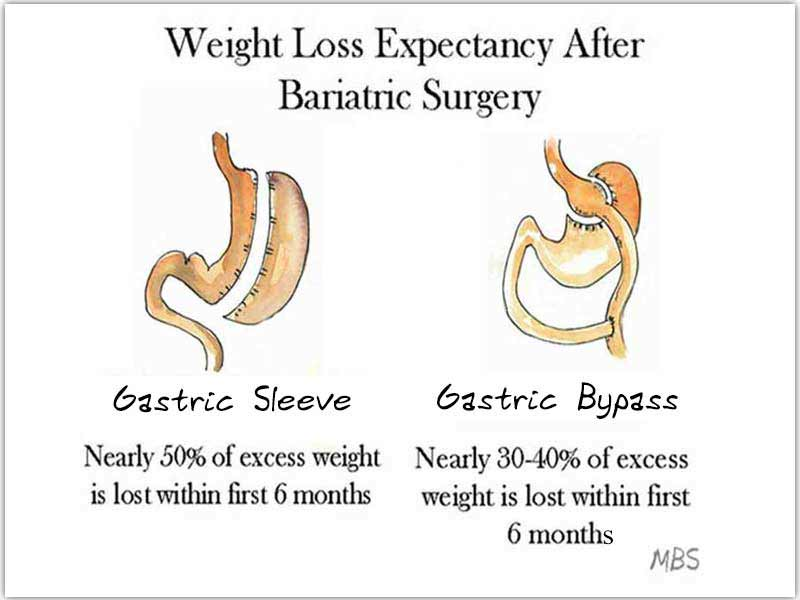 Expected Weight Loss Post WLS