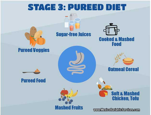 after gastric sleeve surgery diet