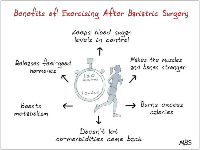 Advantages of Workout After Bariatric Surgery