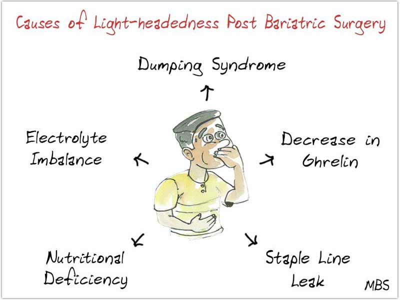 Causes of Dizziness Post WLS