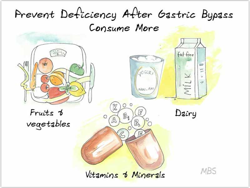 Diet for Gastric Bypass Prevent Deficiency
