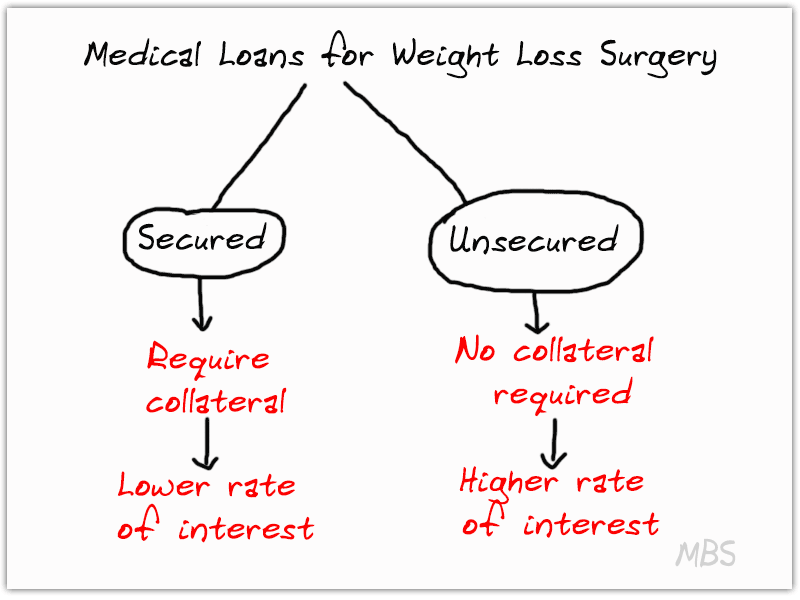 Loans for Bariatric Surgery in Mexico