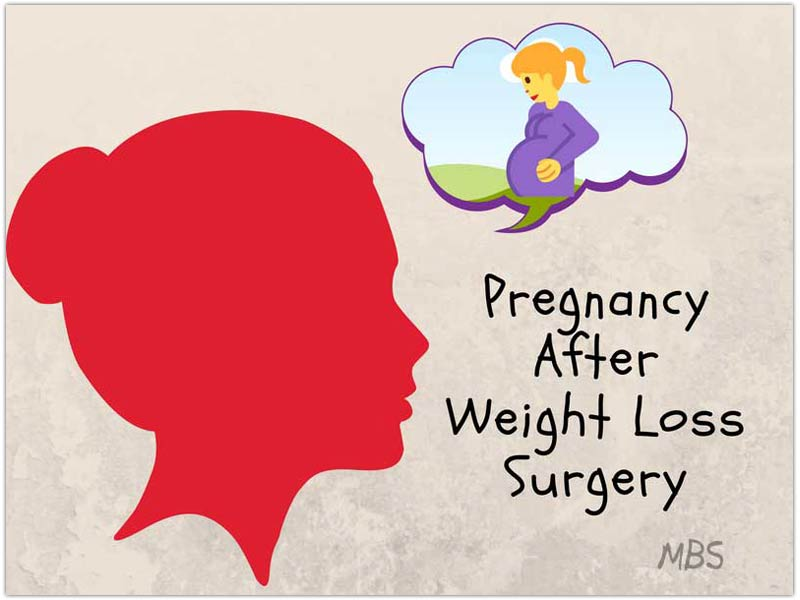 Pregnancy After Weight Loss Surgery