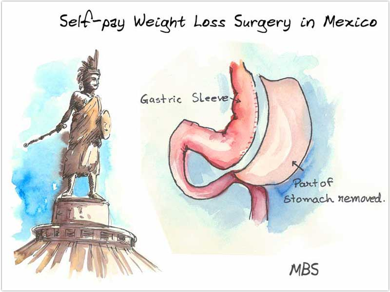 Self pay Bariatric Surgery in Mexico