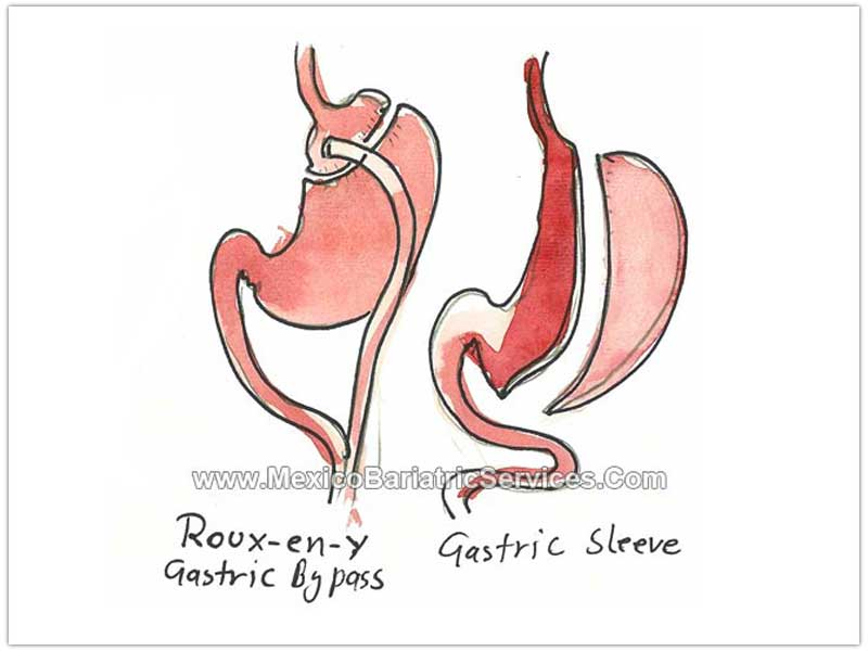 Gastric Sleeve and Bypass Tijuana