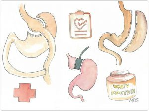 Types of Bariatric Surgery