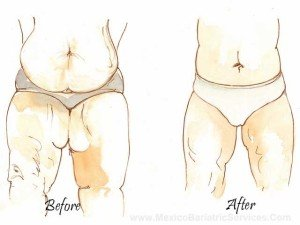 Thigh Lift Before-and-After