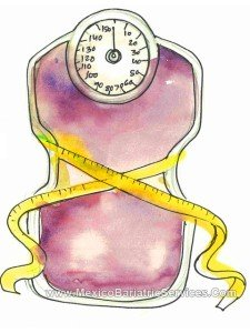 Weight Loss Success with Bariatric Surgery