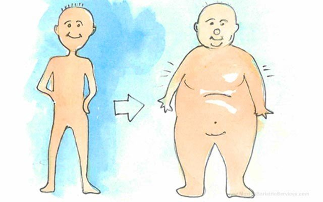 Avoid Weight Regain after Bariatric Surgery
