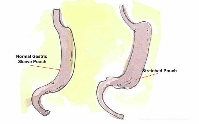 Stretched Gastric Sleeve Pouch