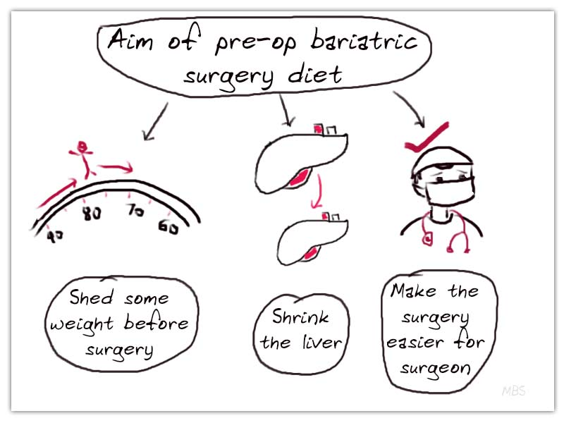 Pre-Bariatric Surgery Diet Guidelines