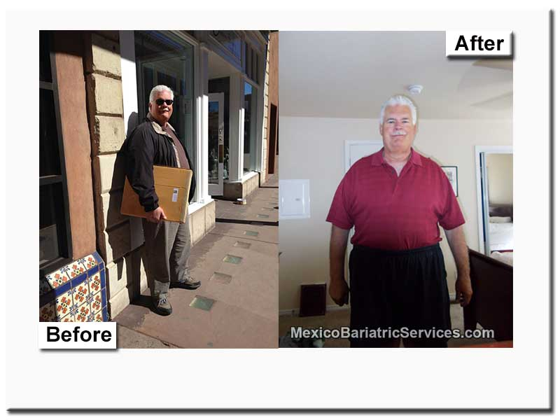 Review Of Gastric Sleeve In Mexico