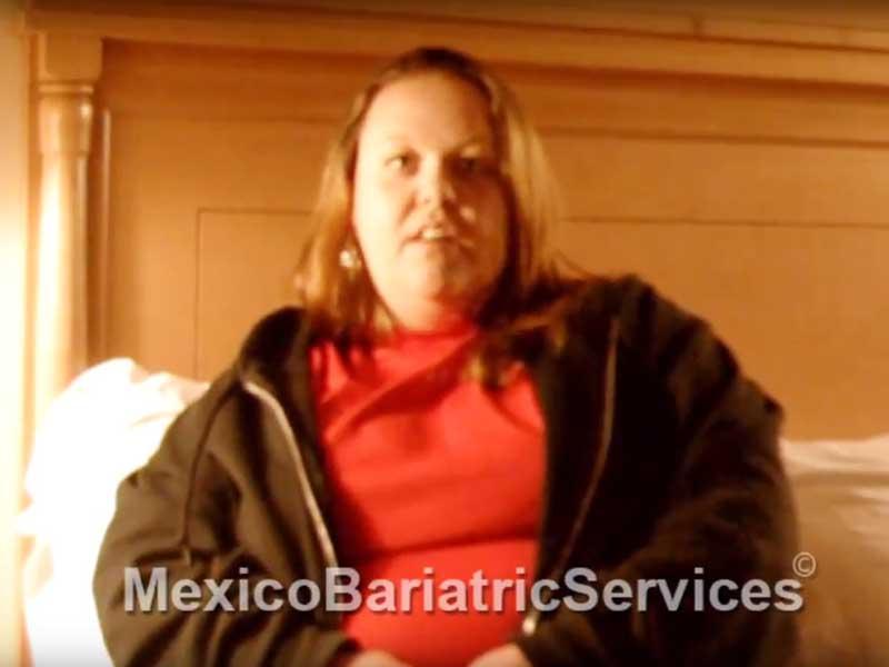 Sleeve Surgery, Tijuana – Testimonial