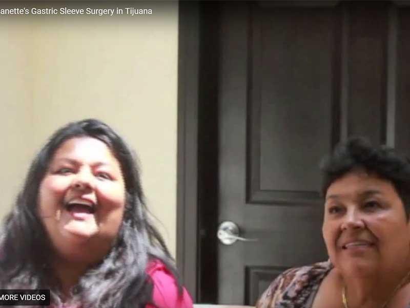 Vertical Sleeve Gastrectomy Testimonial – Tijuana