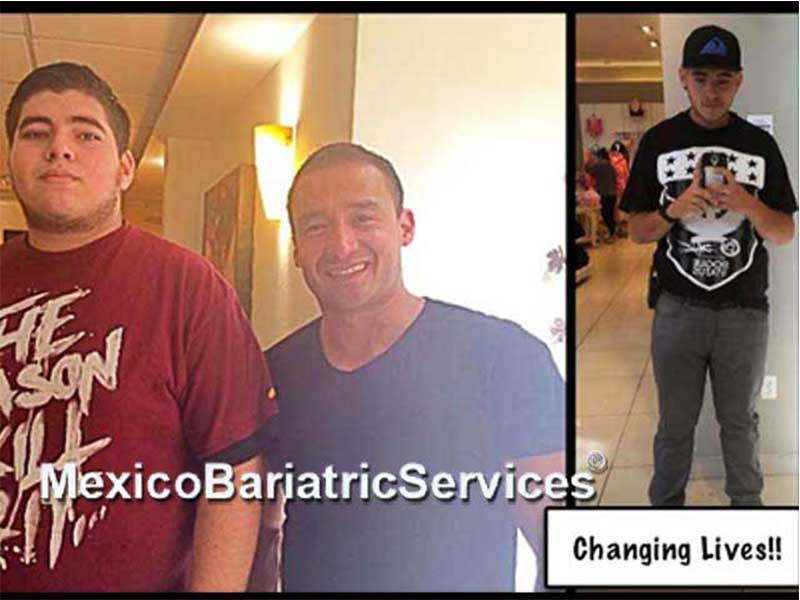 Before and After Gastric Sleeve in Tijuana – Mexico