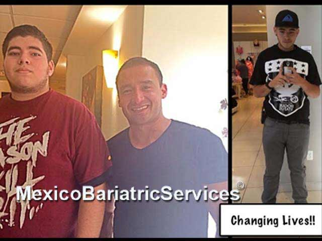 Gastric sleeve before-and-after - Tijuana