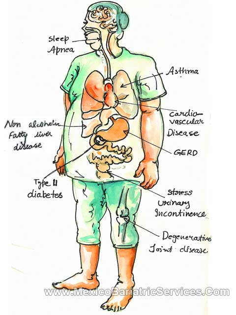 Diseases Resolved with Gastric Bypass