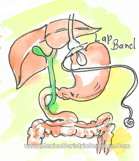 Gastric Band