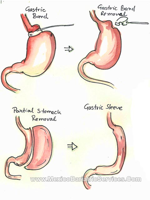Lap Band to Gastric Sleeve Revision in Cancun,Mexico