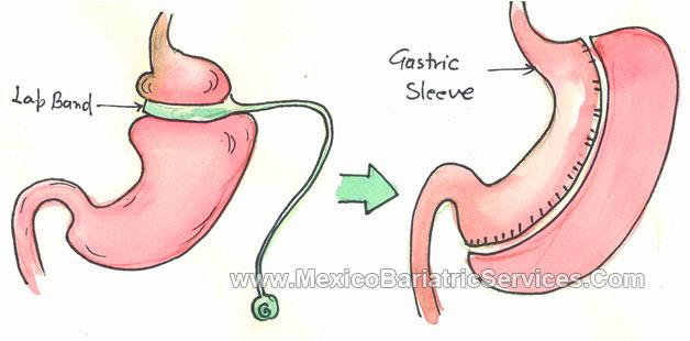 Revision Bariatric Surgery in Puerto Vallarta - Mexico