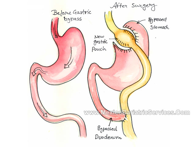 Roux y gastric bypass anatomy