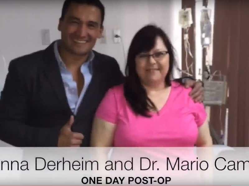Gastric Sleeve Patient Testimonial – Tijuana, Mx