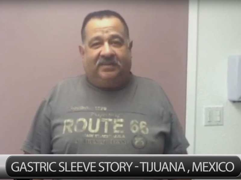 Rick's Vertical Sleeve Experience in Tijuana