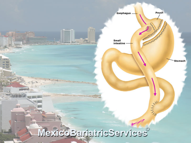 gastric-bypass-in-cancun