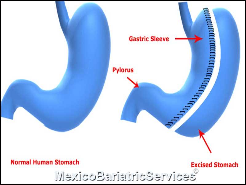 gastric-sleeve-in-guadalajara-1