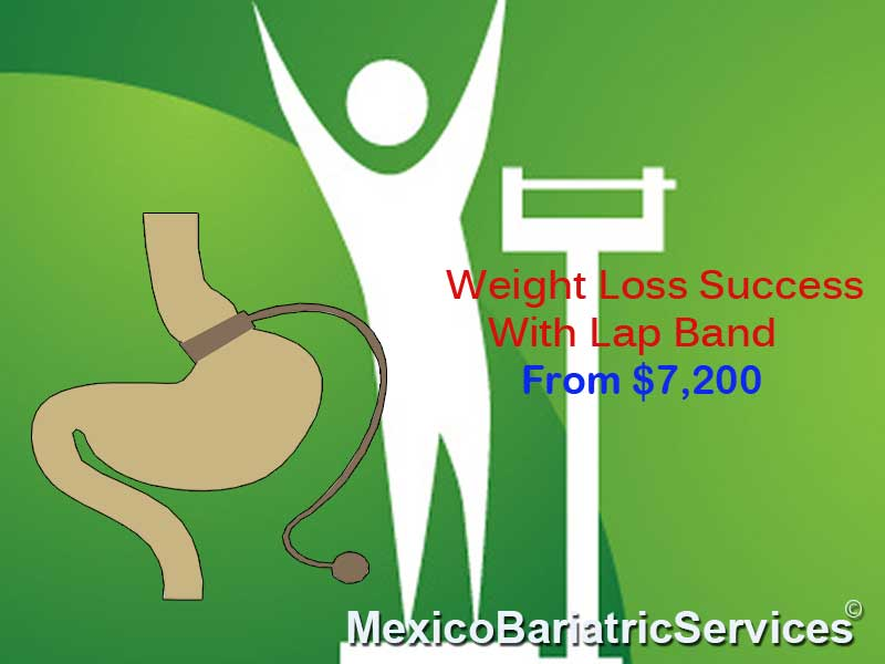 lap-band-in-ciudad-juarez