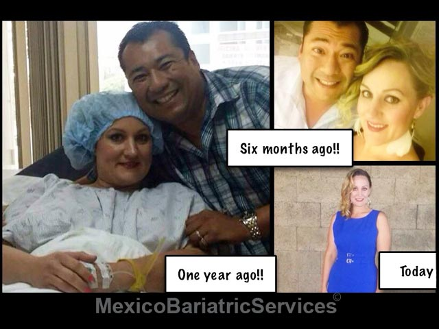 Cynthia---Weight-Loss-Surgery-Before-and-After---Mexico