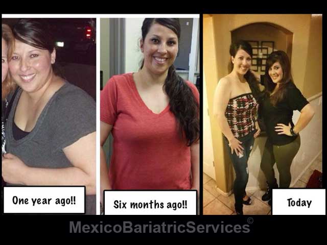 Gastric Sleeve Before and After 6 Months and 1 Year Photos - Tijuana Mexico