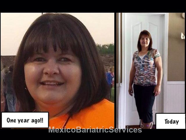 Tanna Weaver - Bariatric Surgery Before and After - Mexico