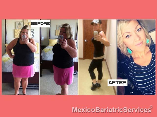 Deborah Before - After Bariatric Surgery - Tijuana