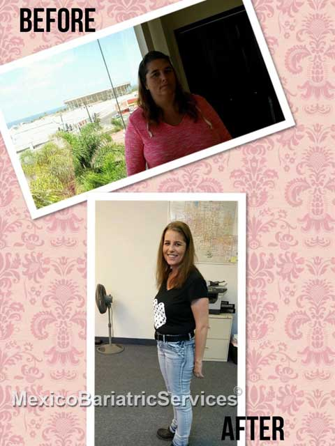 Shelly Before-After Weight Loss Surgery - Mexico