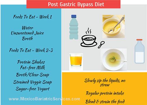 Post Gastric Bypass Diet