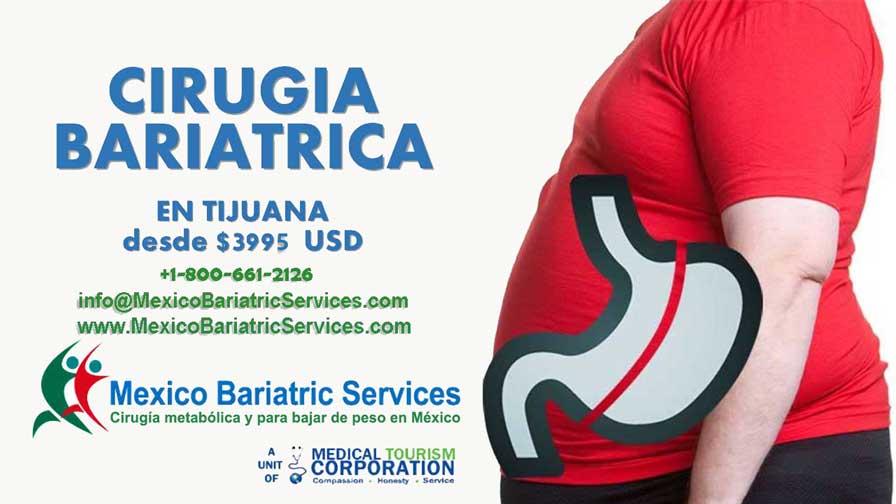 Cirugía Bariátrica - México