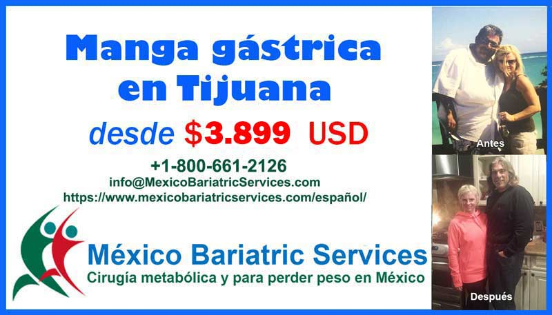 Cirugia Manga Gastrica Tijuana - Baja California