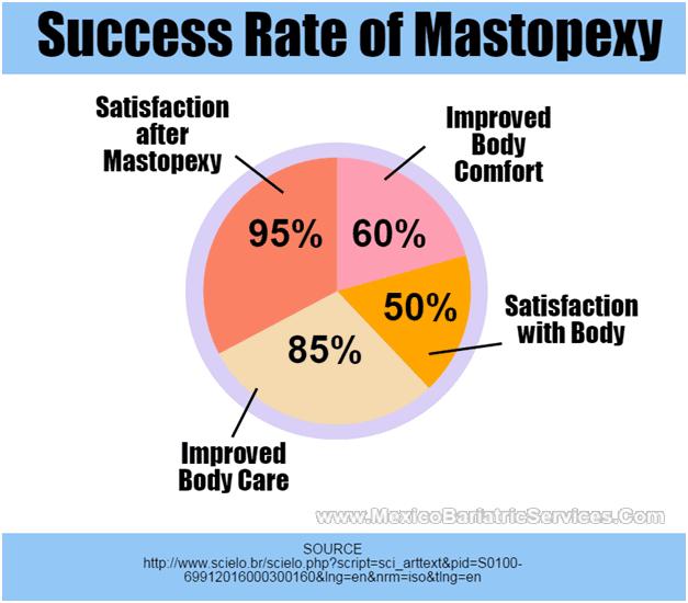 Mastopexy Statistics - Infographic