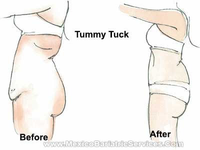 Tummy Tuck in Mexico - Before-and-After