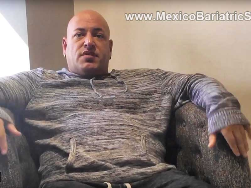 Sleeve Gastrectomy in Tijuana, Mexico – Kirk's Review