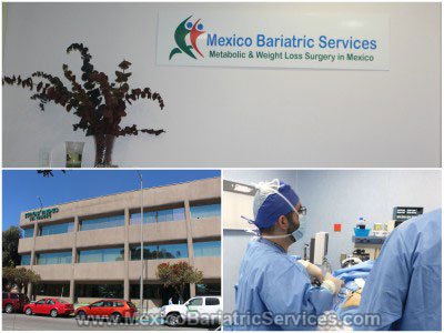 Bariatric Surgery in Mexico