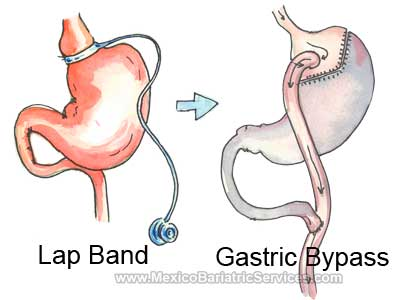 Lap Band to Gastric Bypass in Mexico