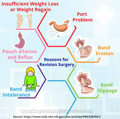 Reasons for Lap Band Revision Surgery