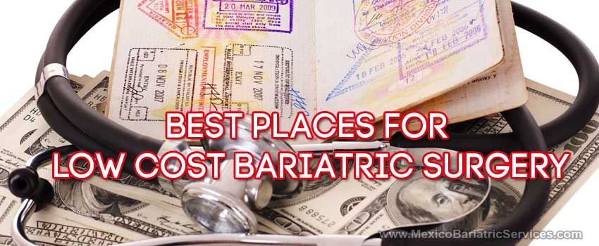 What are the Cheapest Places to get Gastric Sleeve?