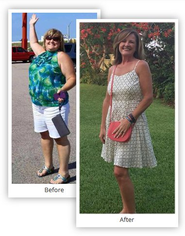 Gastric Sleeve Surgery Results Pictures - Mexico