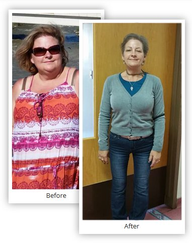 Bariatric Surgery Results Pictures Before and After - Mexico