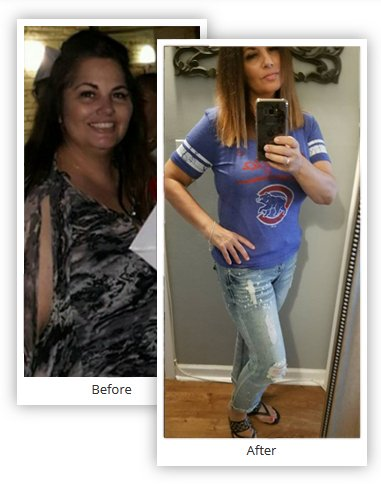 Vertical Gastric Sleeve Before and After - Mexico