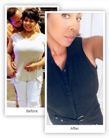 Pictures of People who had Gastric Sleeve Before and After - Mexico